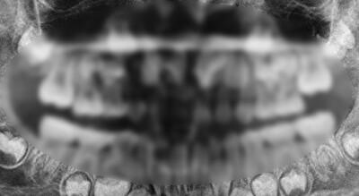 10年間歯を磨かなかった人.jpg