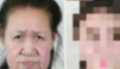 おばあちゃんに見える少女の手術.jpg