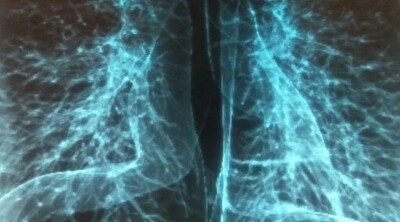 コロナ感染者の肺のレントゲン写真.jpg