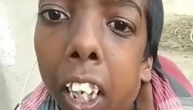 歯が沢山ある人.png