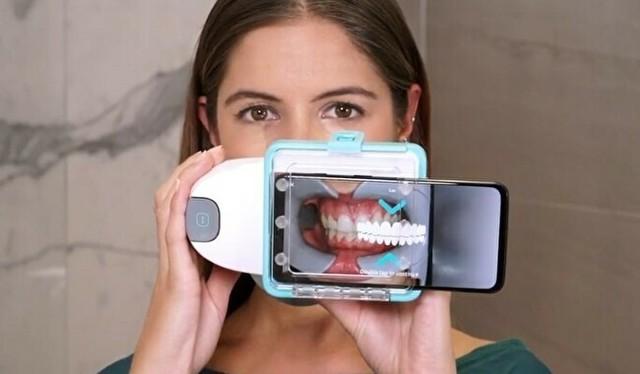歯を撮影するためのアプリ.jpg