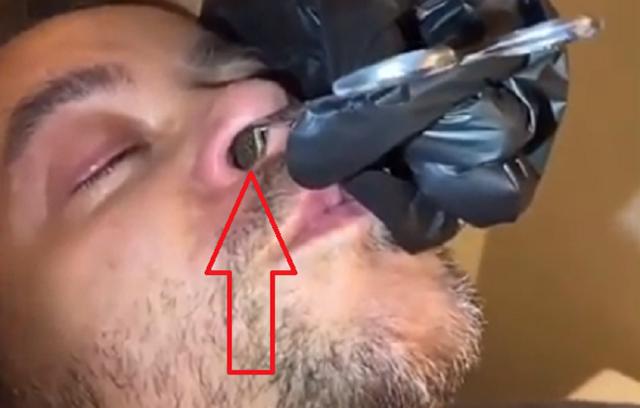 鼻に異物を入れた男.png