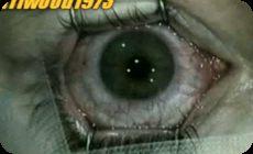 レーザーによる眼球の手術